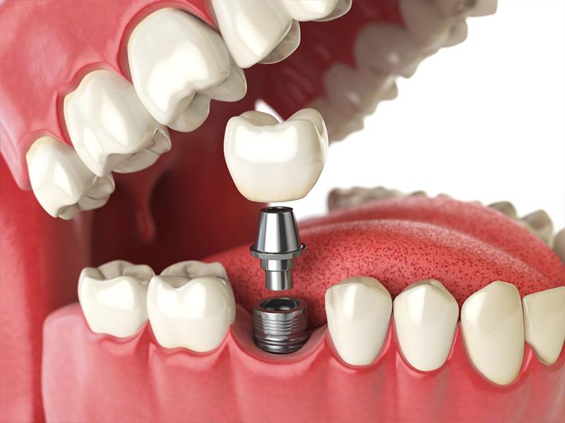iasi4u – Implant dentar