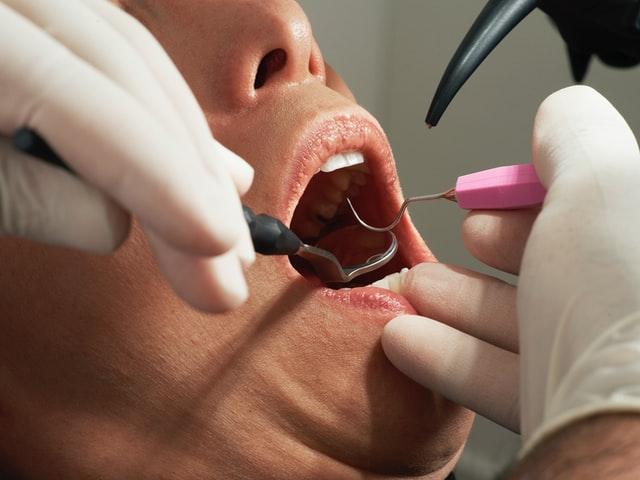 cabinet stomatologie sector 1 precum Optim Dental