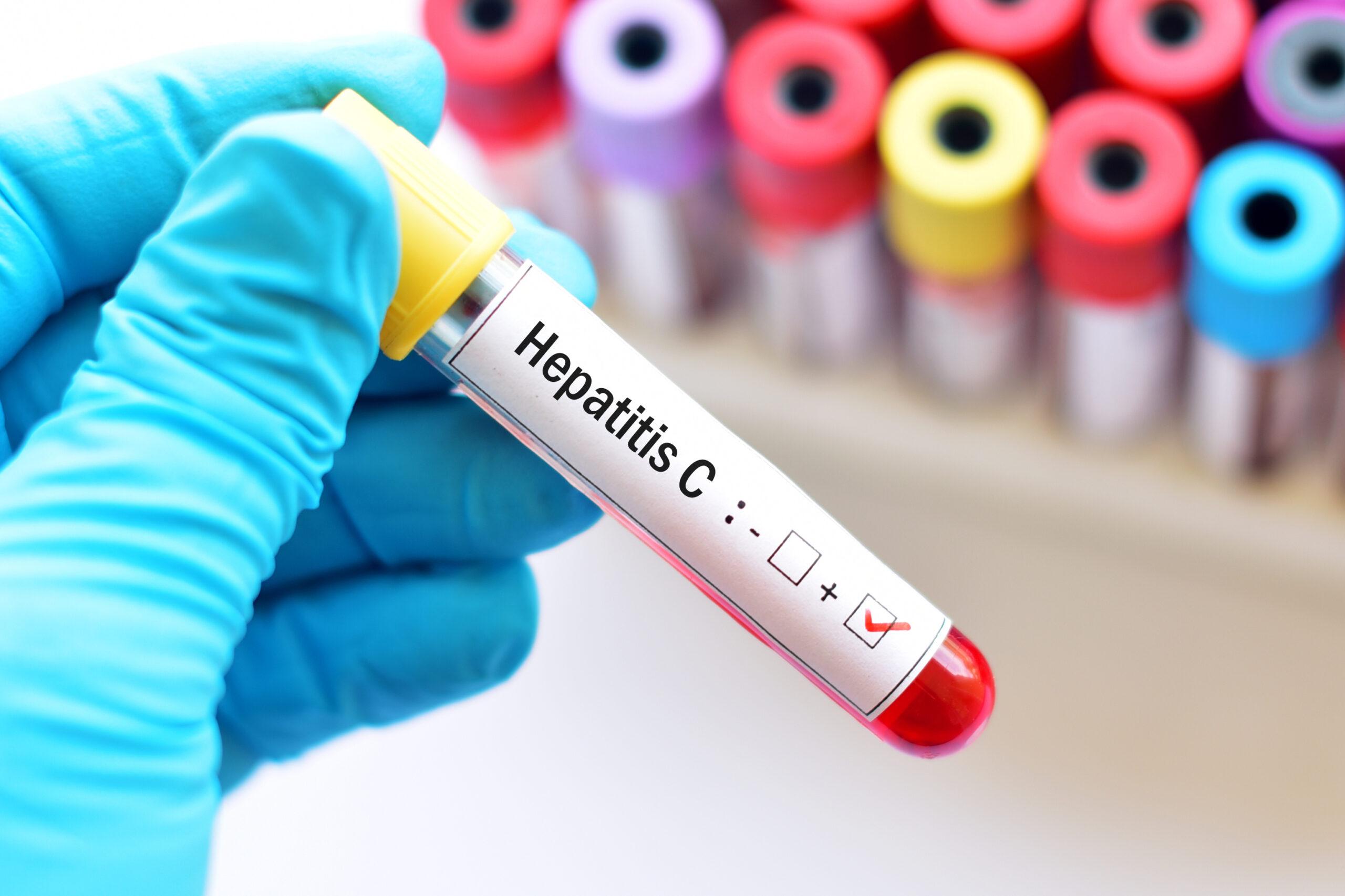 Blood,Sample,With,Hepatitis,C,Virus,(hcv),Positive