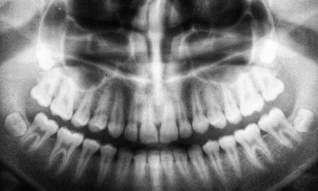 la cabinet stomatologic Bucuresti